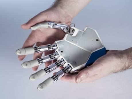 bionic han
