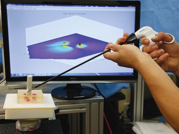 laparoscopic pressure sensors