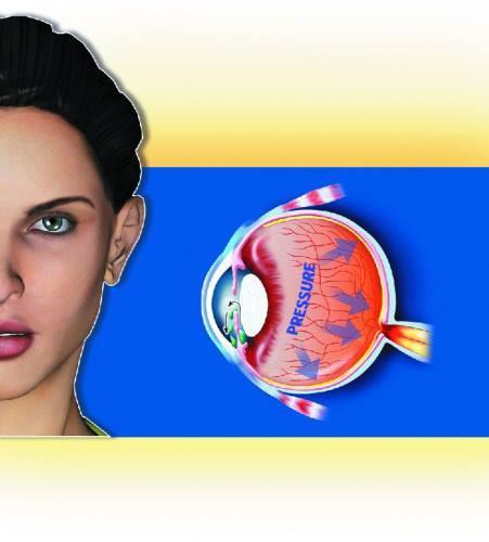 new cornea layer